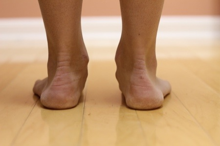 You Can Run a Marathon with Flat Feet, No Orthotics, and
